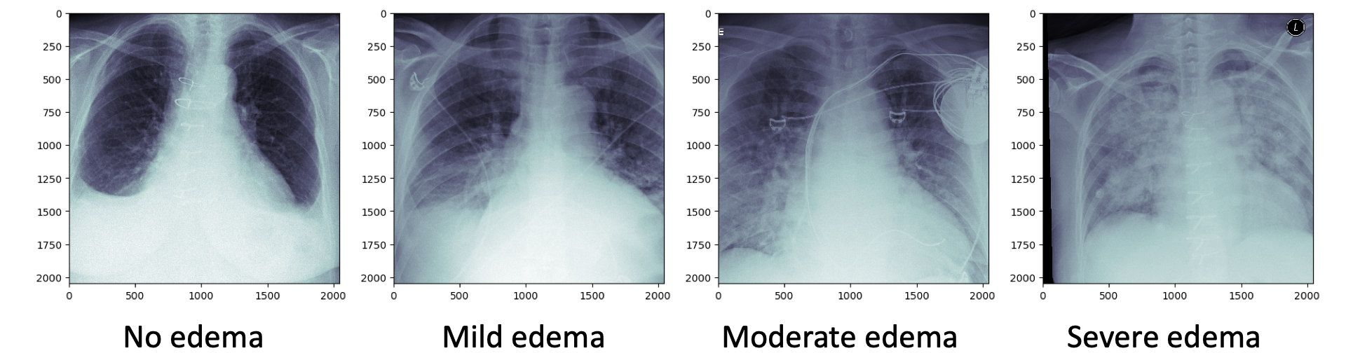 Representative chest x-rays of pulmonary edema