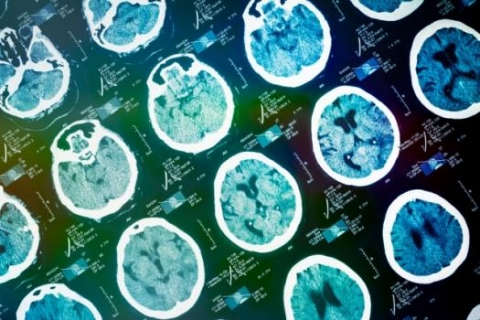 Combining MRI and other data helps machine-learning systems predict effects of neurodegenerative disease.